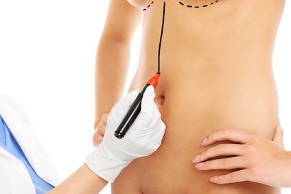 A picture of a doctor marking belly for surgery