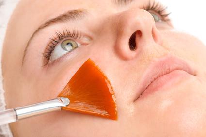 Peeling facial en clinica estetica dra. Esteban en Bilbao
