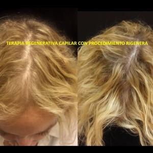 Terapia rejenerativa capilar - mujer